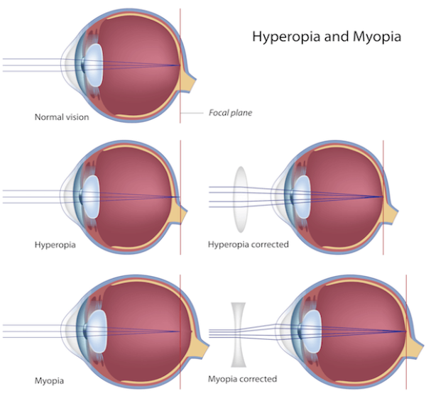 b.-myopia-hyperopia-e1498288516679