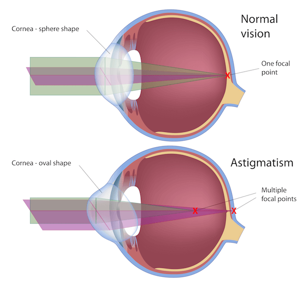 c. astigmatism